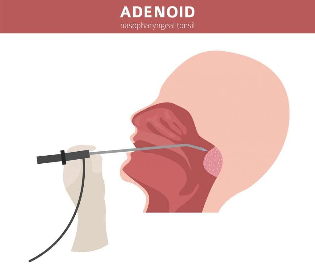 Adenoid Nasopharyngeal Tonsil